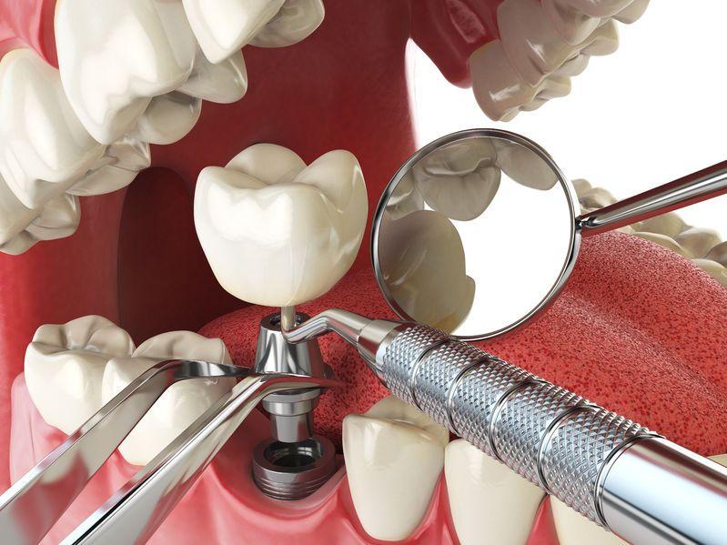 Tytanowe implanty zębów Toruń - stomatologia estetyczna