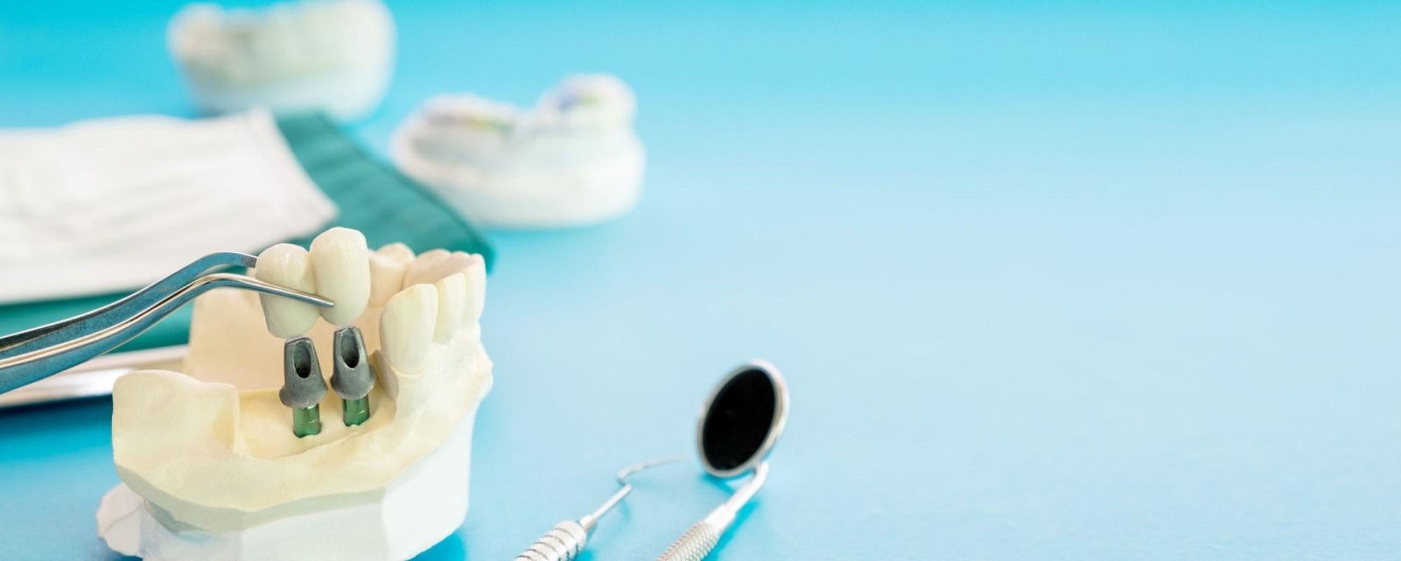 implanty zębów nowoczesne leczenie wypełnianie luk w jamie ustnej
