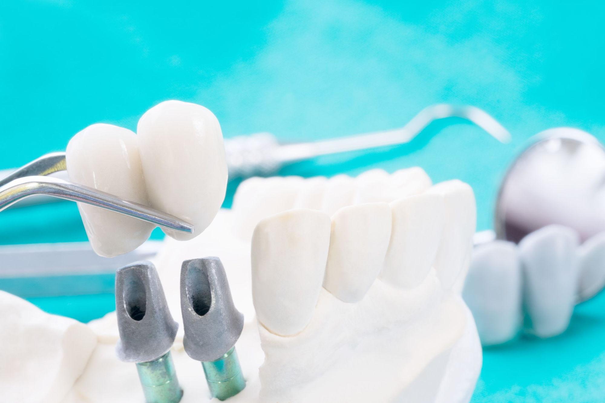 implanty zębów u stomatologa co warto wiedzieć